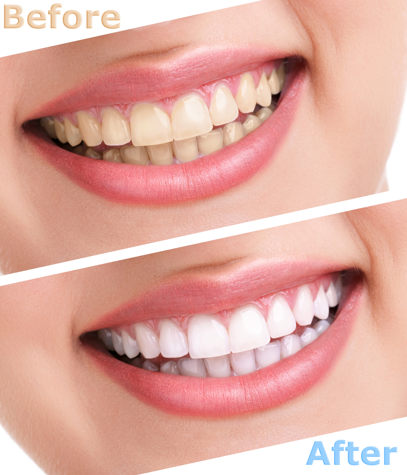 how to use opalescence tooth whitening system
