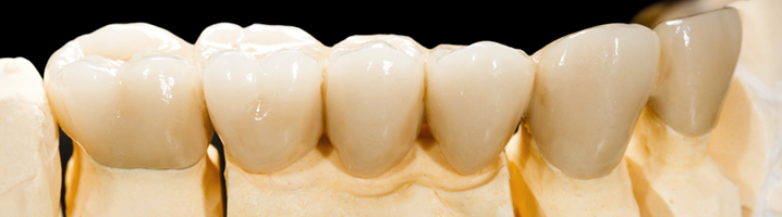 dentalbridge-banner