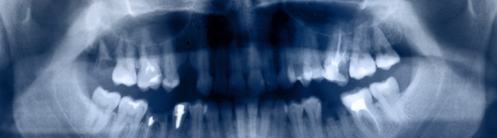 root-canal-banner